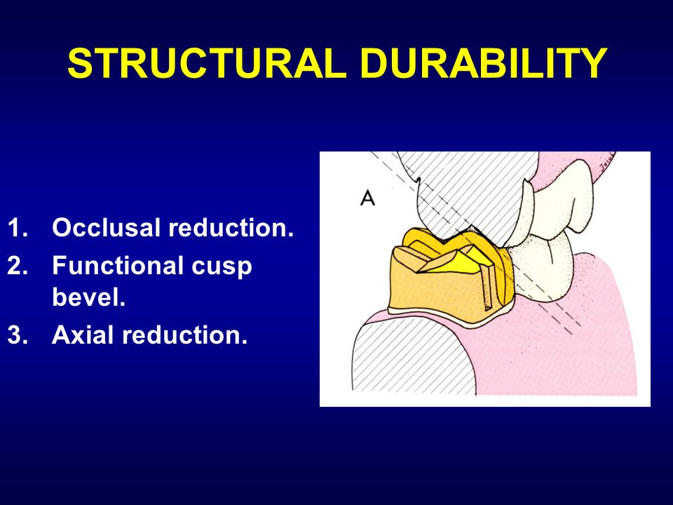 STRUCTURAL DURABILITY 1.Occlusal reduction. 2.Functional cusp bevel. 3.Axial reduction.