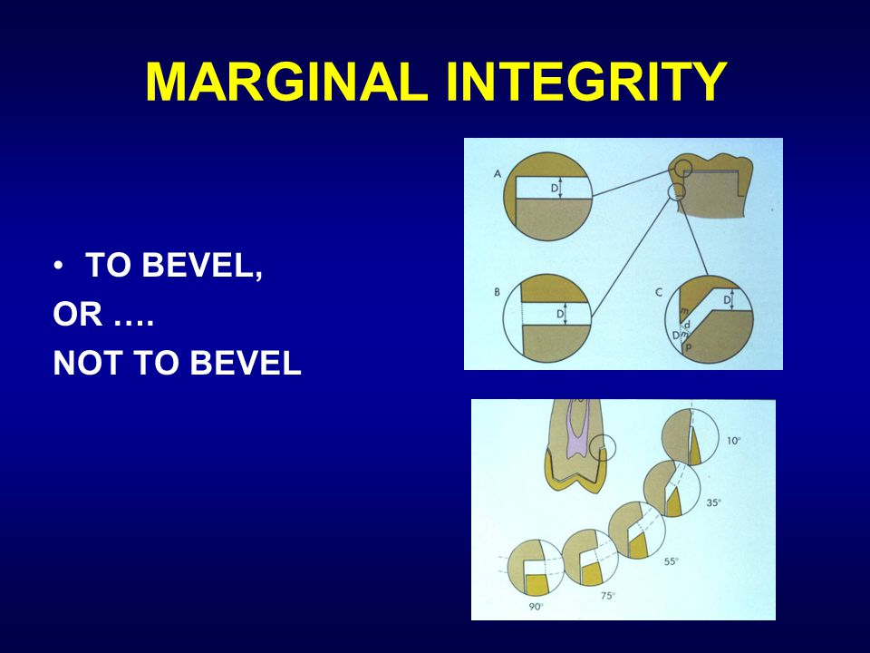 MARGINAL INTEGRITY TO BEVEL, OR …. NOT TO BEVEL