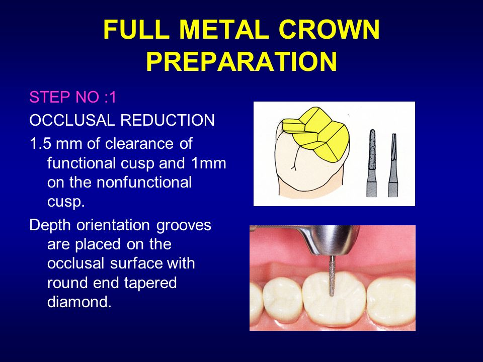 FULL METAL CROWN PREPARATION STEP NO :1 OCCLUSAL REDUCTION 1.5 mm of clearance of functional cusp and 1mm on the nonfunctional cusp. Depth orientation
