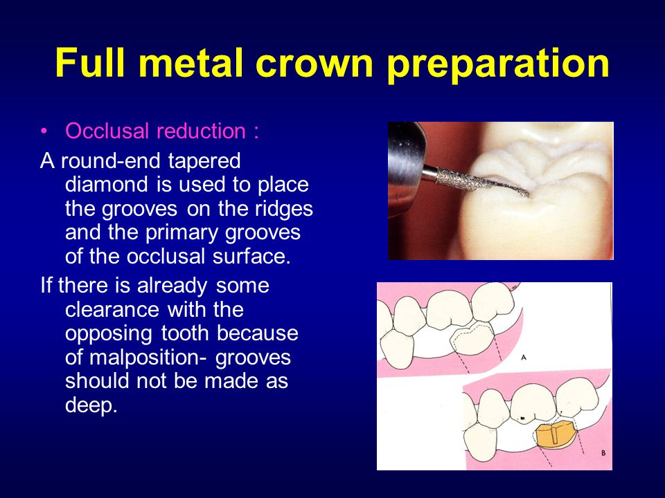 Full metal crown preparation Occlusal reduction : A round-end tapered diamond is used to place the grooves on the ridges and the primary grooves of th