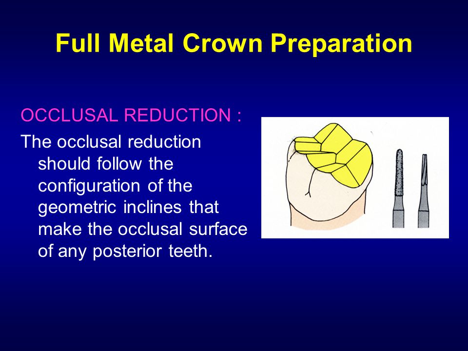 Full Metal Crown Preparation OCCLUSAL REDUCTION : The occlusal reduction should follow the configuration of the geometric inclines that make the occlu