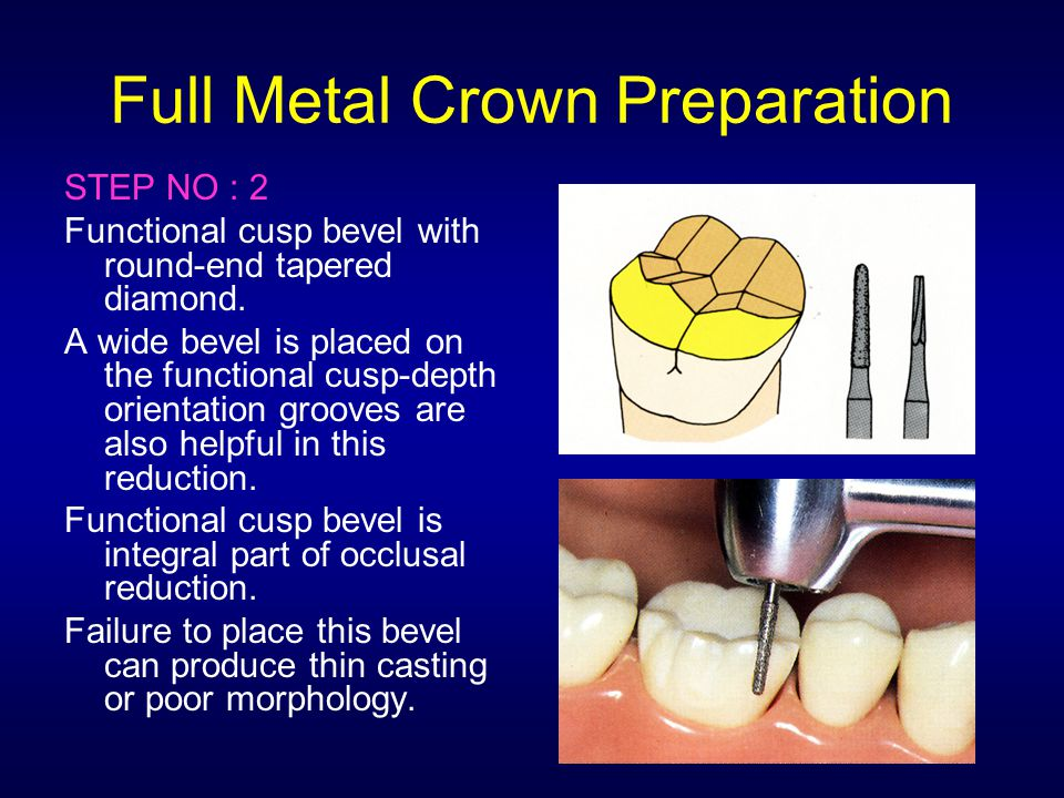 Full Metal Crown Preparation STEP NO : 2 Functional cusp bevel with round-end tapered diamond. A wide bevel is placed on the functional cusp-depth ori