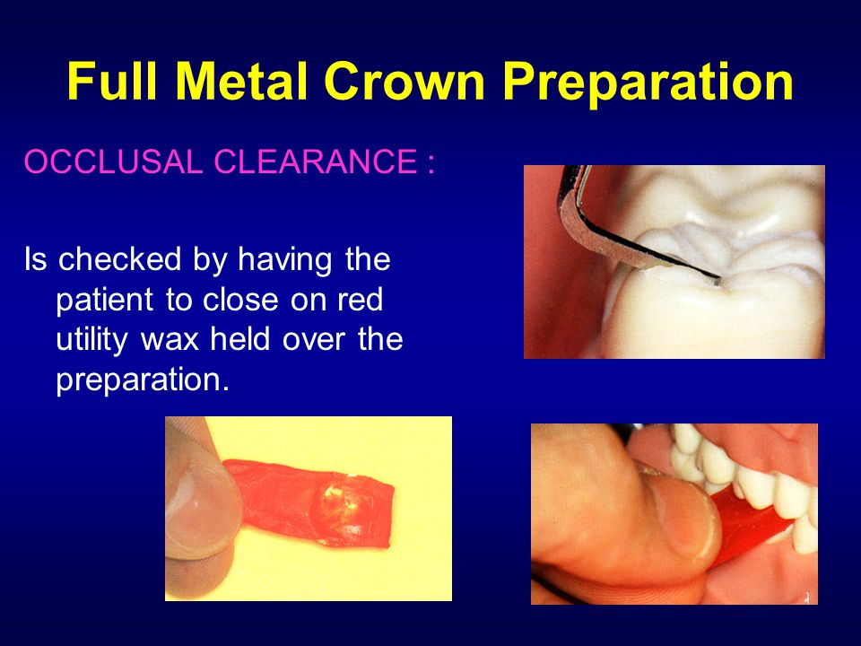 Full Metal Crown Preparation OCCLUSAL CLEARANCE : Is checked by having the patient to close on red utility wax held over the preparation.