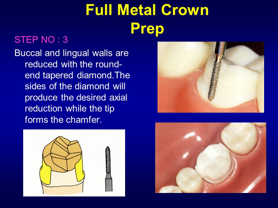 Full Metal Crown Prep STEP NO : 3 Buccal and lingual walls are reduced with the round- end tapered diamond.The sides of the diamond will produce the d