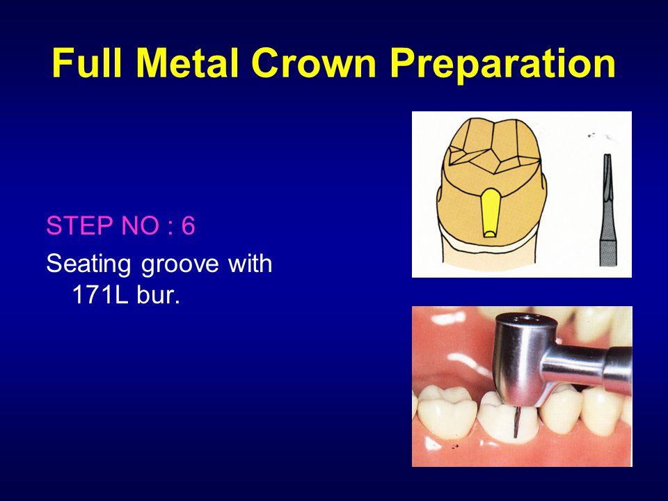 Full Metal Crown Preparation STEP NO : 6 Seating groove with 171L bur.