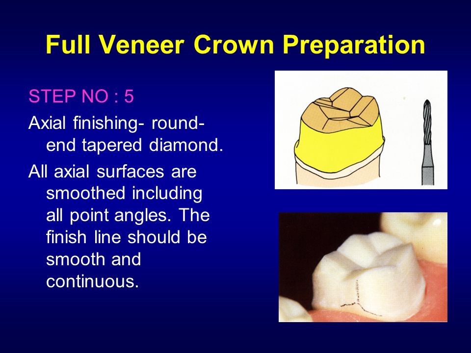 Full Veneer Crown Preparation STEP NO : 5 Axial finishing- round- end tapered diamond. All axial surfaces are smoothed including all point angles. The