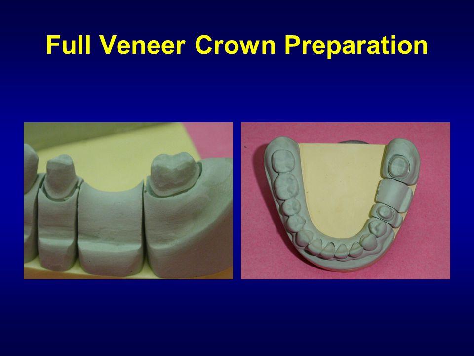 Full Veneer Crown Preparation