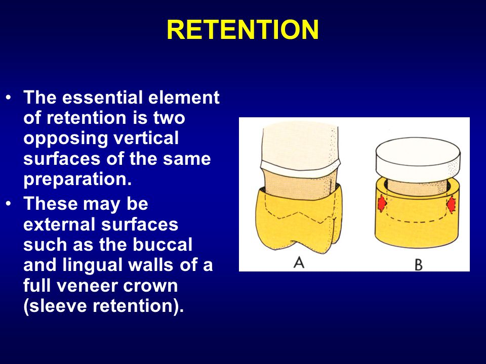 RETENTION The essential element of retention is two opposing vertical surfaces of the same preparation. These may be external surfaces such as the buc