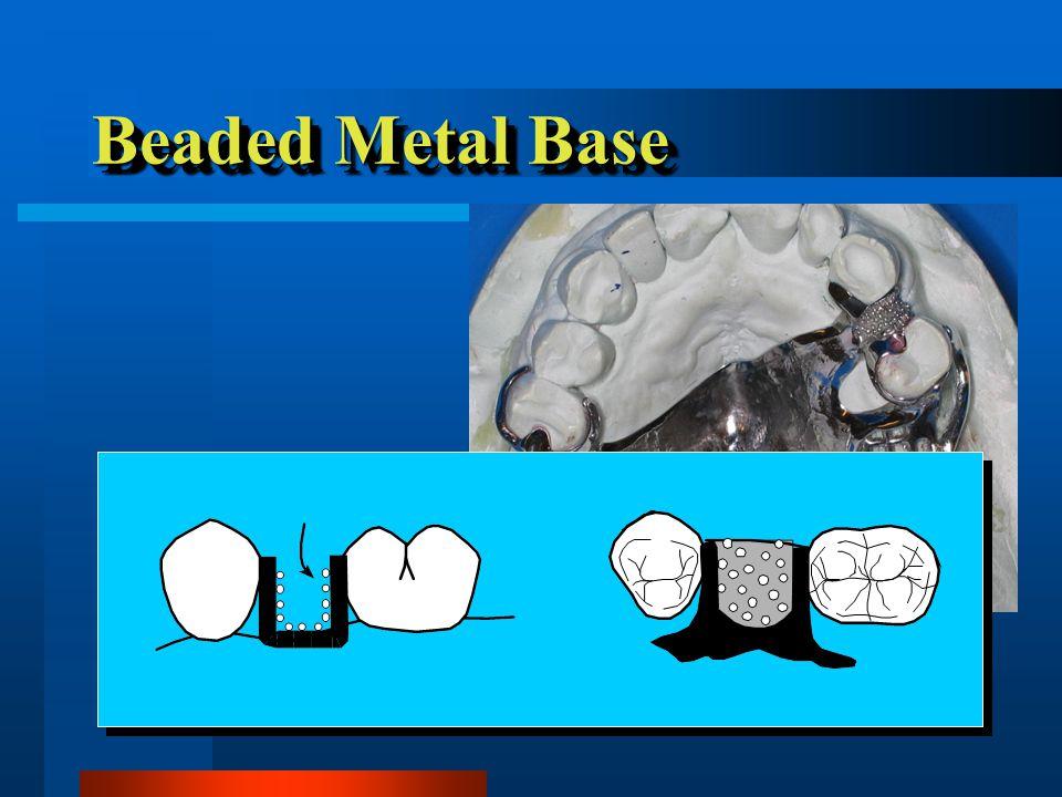 Replacement Teeth Acrylic denture teeth Acrylic denture teeth –Cause less attrition than porcelain –Easier to arrange, modify & adjust Acrylic denture teeth Acrylic denture teeth –Cause less attrition than porcelain –Easier to arrange, modify & adjust