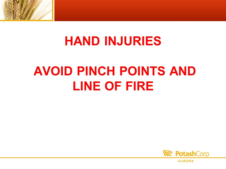 HAND INJURIES AVOID PINCH POINTS AND LINE OF FIRE