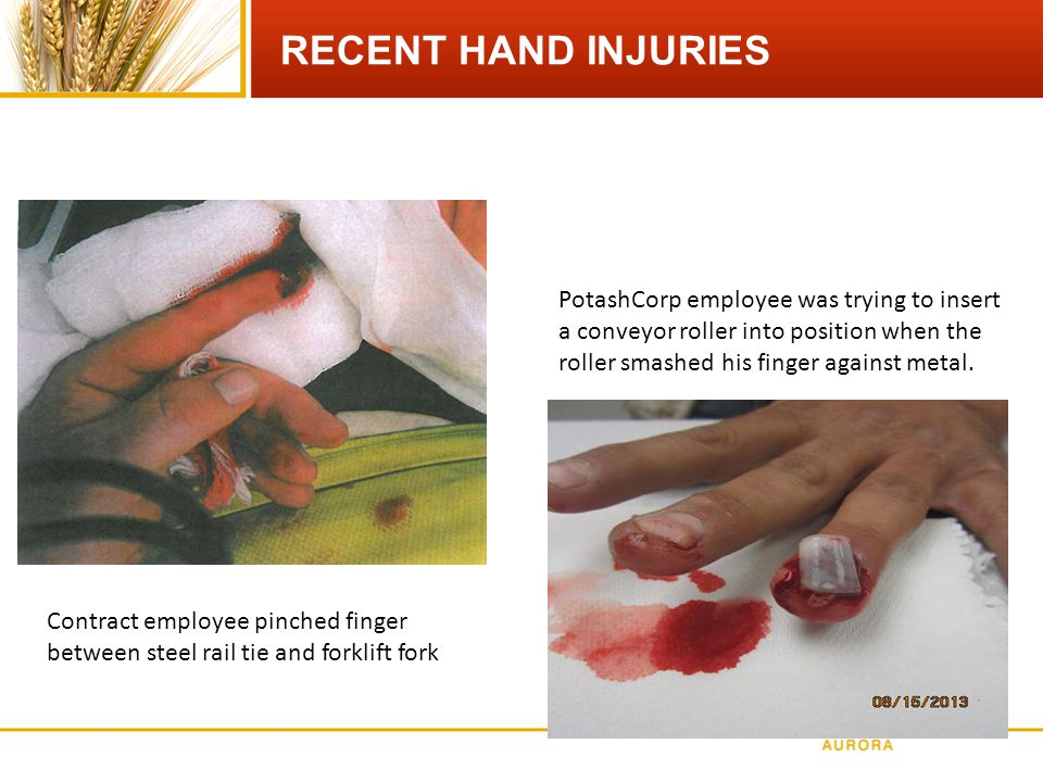 RECENT HAND INJURIES Contract employee pinched finger between steel rail tie and forklift fork PotashCorp employee was trying to insert a conveyor roller into position when the roller smashed his finger against metal.