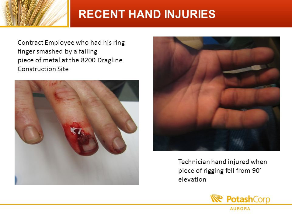 RECENT HAND INJURIES Contract Employee who had his ring finger smashed by a falling piece of metal at the 8200 Dragline Construction Site Technician hand injured when piece of rigging fell from 90 elevation