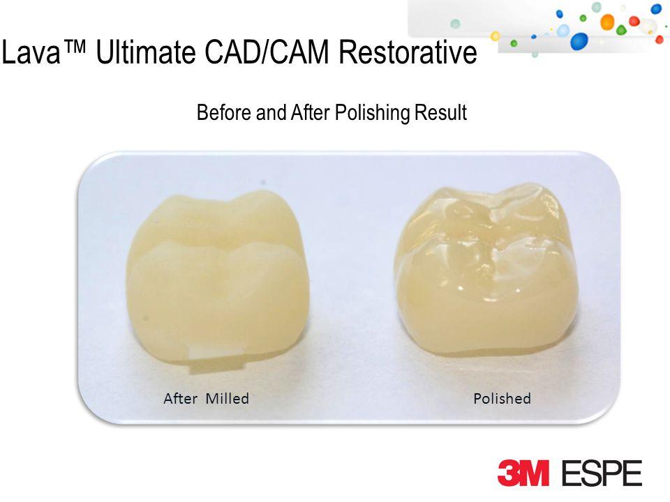 Lava Ultimate CAD/CAM Restorative Adjust with Diamond Bur