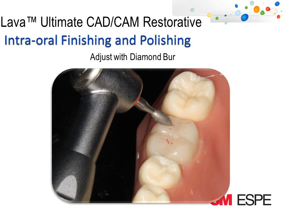 Lava Ultimate CAD/CAM Restorative Finish Adjusted Area with Course and Medium Rubber Point Course Medium