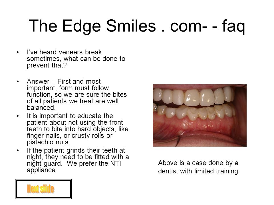 The Edge Smiles. com- - faq Ive heard veneers break sometimes, what can be done to prevent that.