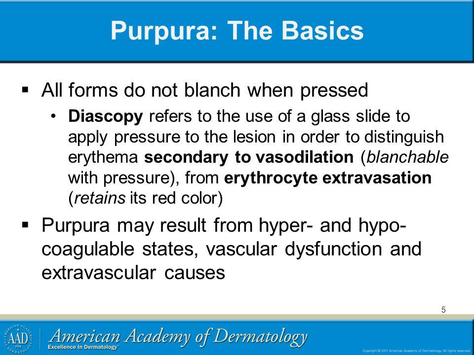 Examples of Purpura Petechia Ecchymosis 6