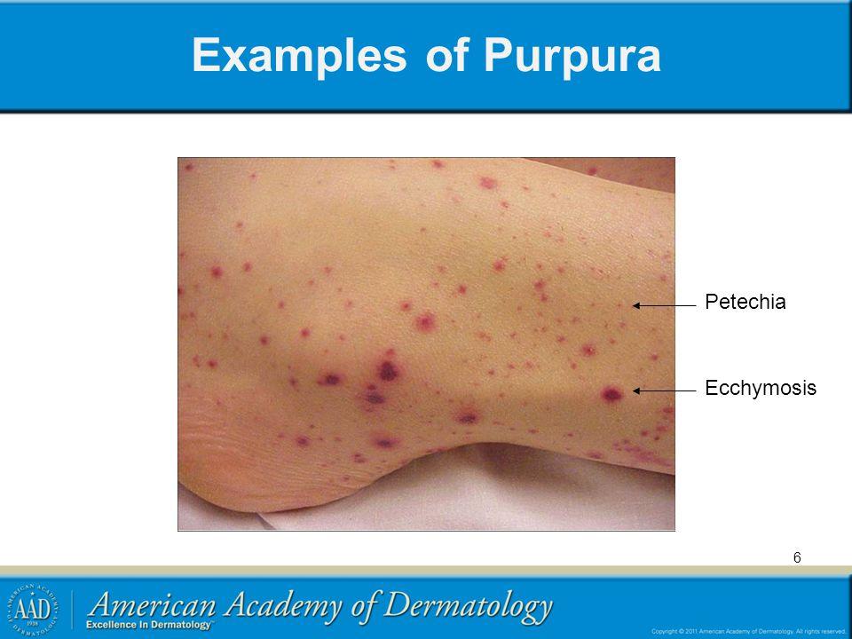 Examples of Purpura Ecchymoses Petechiae 7
