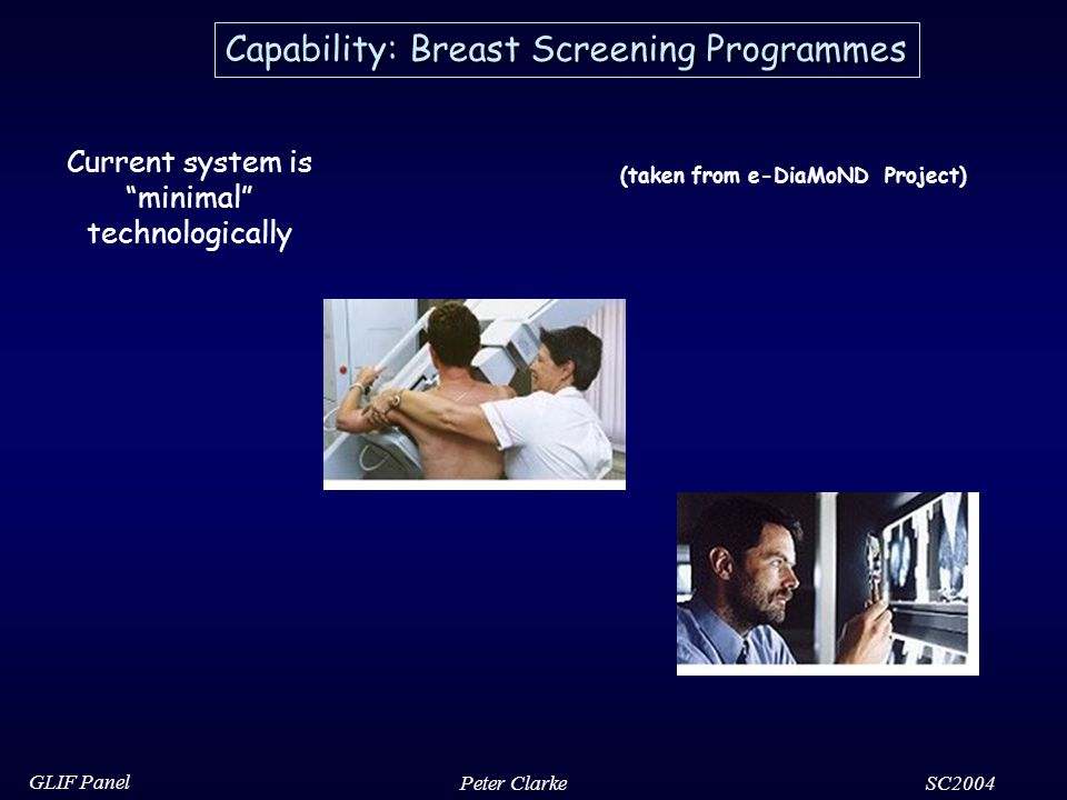 SC2004 GLIF Panel Peter Clarke Capability: Breast Screening Programmes Current system is minimal technologically (taken from e-DiaMoND Project)