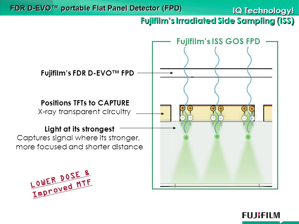 FDR D-EVO portable Flat Panel Detector (FPD) IQ Technology.