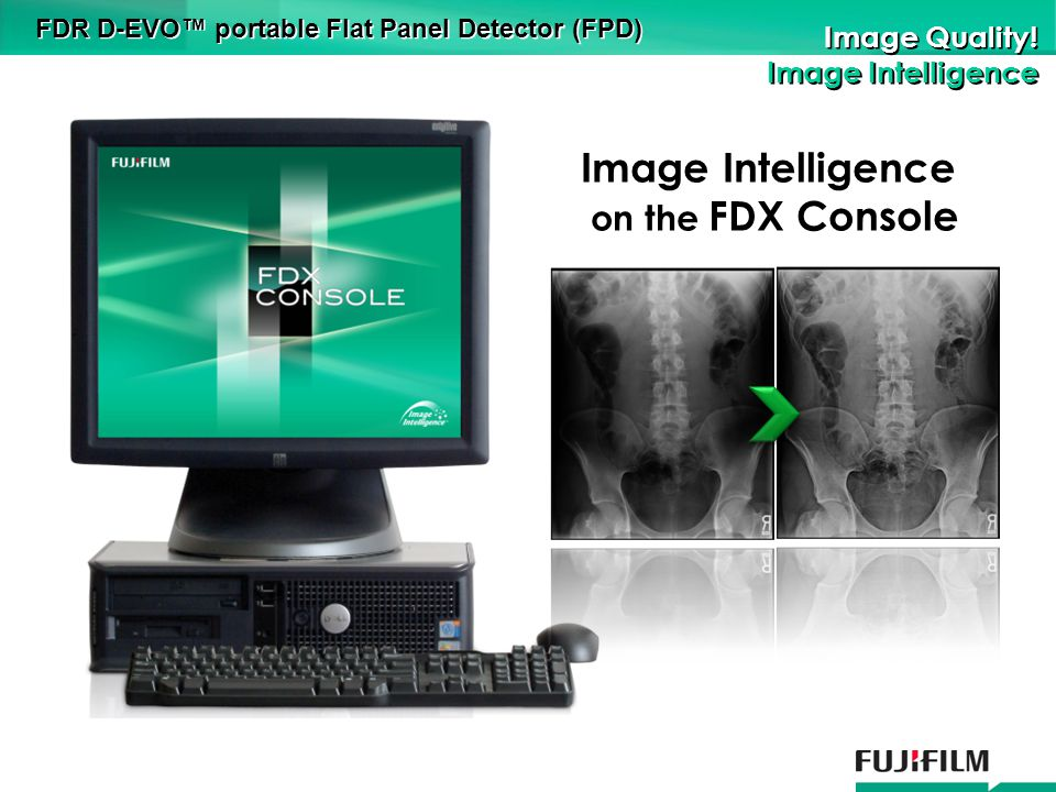 FDR D-EVO portable Flat Panel Detector (FPD) Image Quality.
