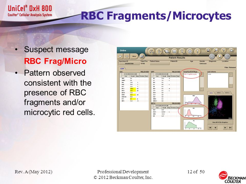 Rev. A (May 2012)Professional Development © 2012 Beckman Coulter, Inc. 11 of 50 Red Cell Messages Suspect message Dimorphic Reds Data pattern consiste