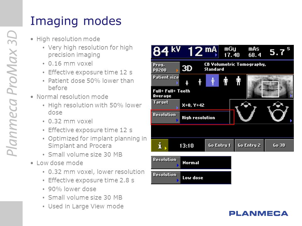 Imaging modes High resolution mode Very high resolution for high precision imaging 0.16 mm voxel Effective exposure time 12 s Patient dose 50% lower t