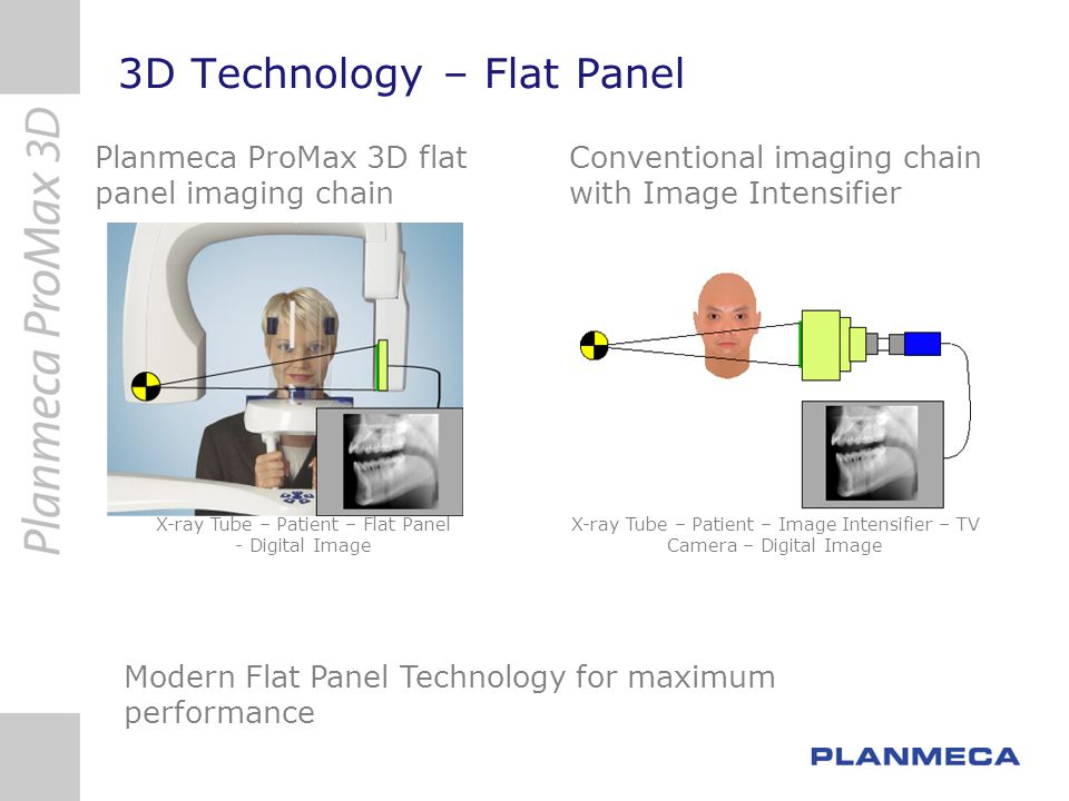 X-ray Tube – Patient – Image Intensifier – TV Camera – Digital Image X-ray Tube – Patient – Flat Panel - Digital Image Modern Flat Panel Technology fo