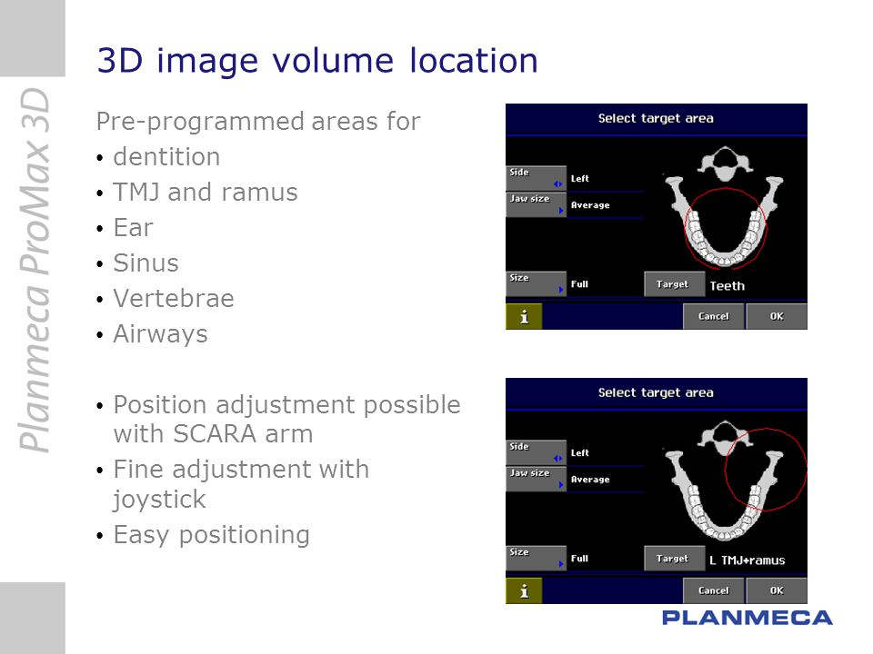 3D image volume location Pre-programmed areas for dentition TMJ and ramus Ear Sinus Vertebrae Airways Position adjustment possible with SCARA arm Fine
