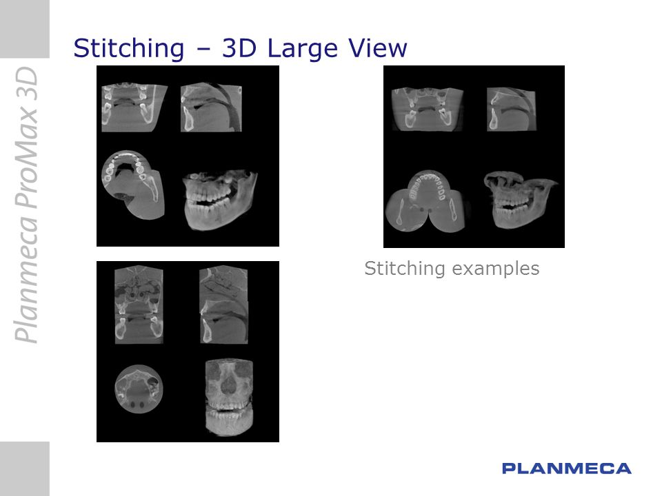 3D Technology CBCT - Cone Beam Computed Tomography CBVT - Cone Beam Volume Tomography Technological advance from traditional fan beam CT Image data is a cylinder, not a set of single slices Click here to play movie