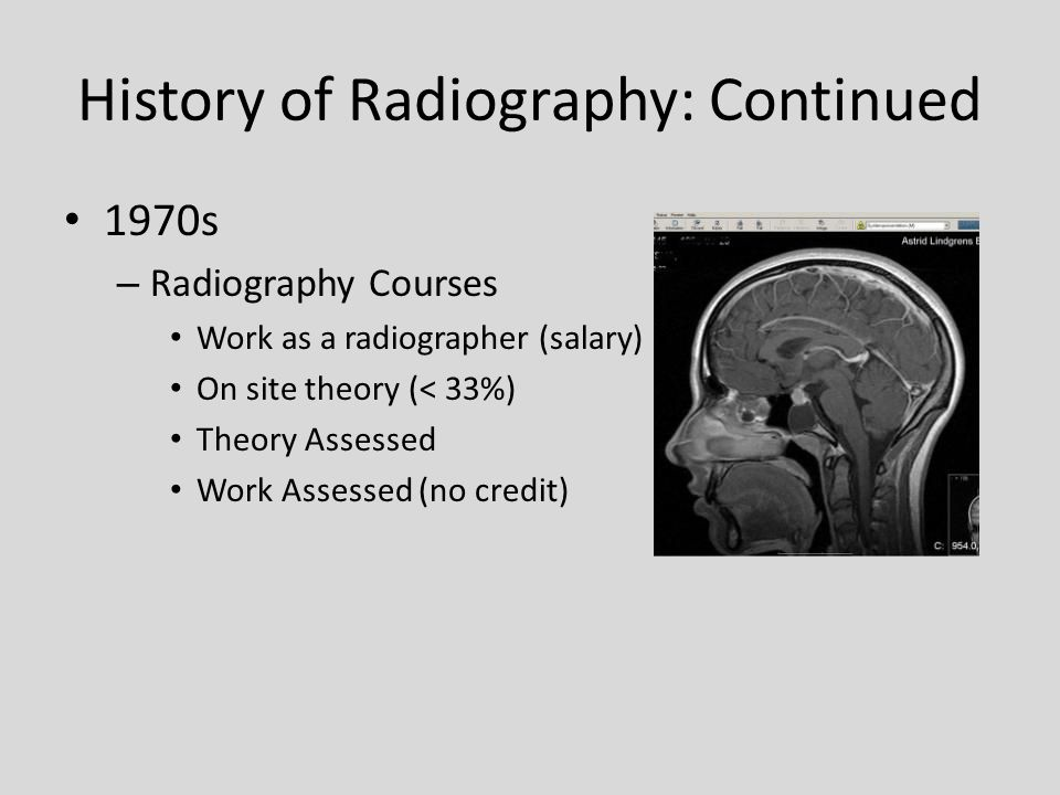 History of Radiography: Continued 1970s – Radiography Courses Work as a radiographer (salary) On site theory (< 33%) Theory Assessed Work Assessed (no credit)