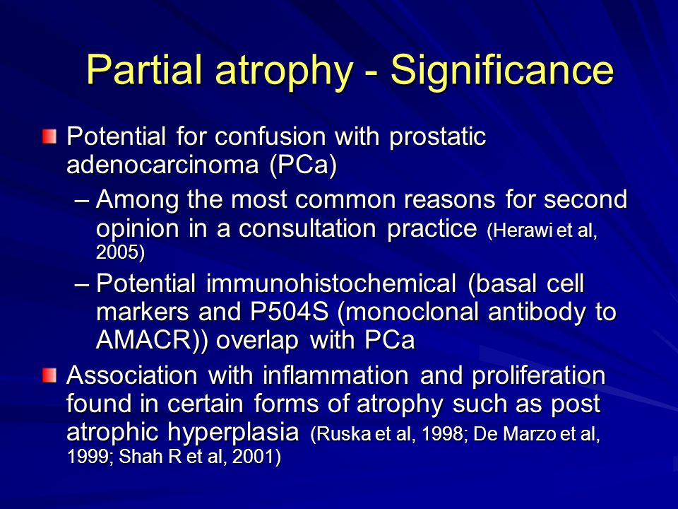 Partial atrophy - Significance Potential for confusion with prostatic adenocarcinoma (PCa) –Among the most common reasons for second opinion in a consultation practice (Herawi et al, 2005) –Potential immunohistochemical (basal cell markers and P504S (monoclonal antibody to AMACR)) overlap with PCa Association with inflammation and proliferation found in certain forms of atrophy such as post atrophic hyperplasia (Ruska et al, 1998; De Marzo et al, 1999; Shah R et al, 2001)