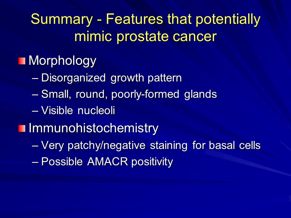 Summary - Features that potentially mimic prostate cancer Morphology –Disorganized growth pattern –Small, round, poorly-formed glands –Visible nucleoli Immunohistochemistry –Very patchy/negative staining for basal cells –Possible AMACR positivity