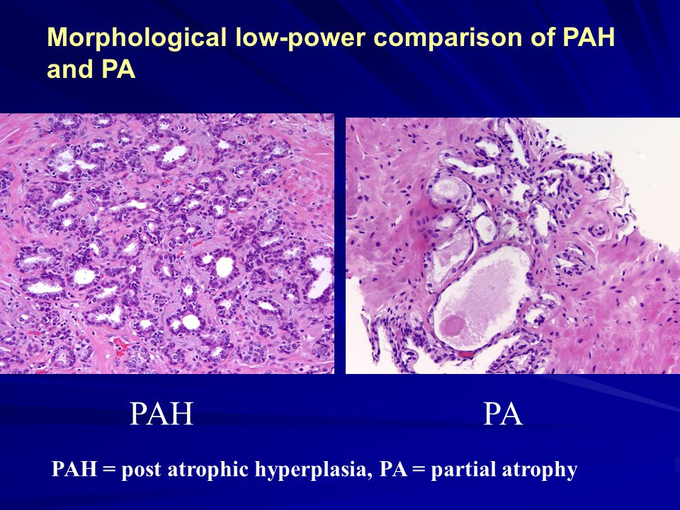 PAHPA PAH = post atrophic hyperplasia, PA = partial atrophy Morphological low-power comparison of PAH and PA