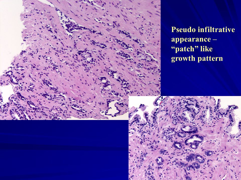 Pseudo infiltrative appearance – patch like growth pattern