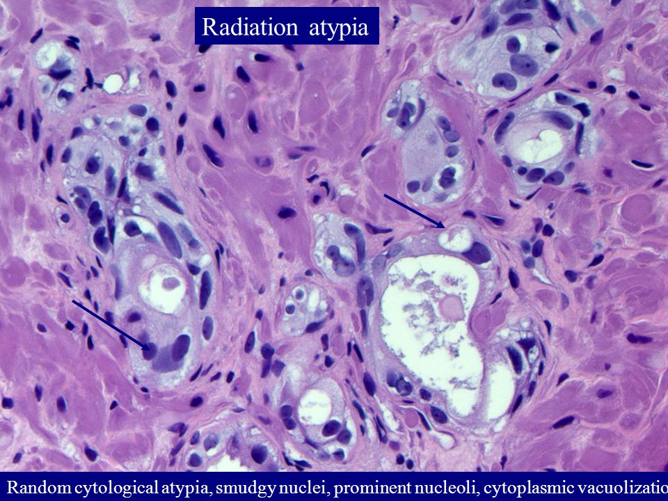 Random cytological atypia, smudgy nuclei, prominent nucleoli, cytoplasmic vacuolization Radiation atypia