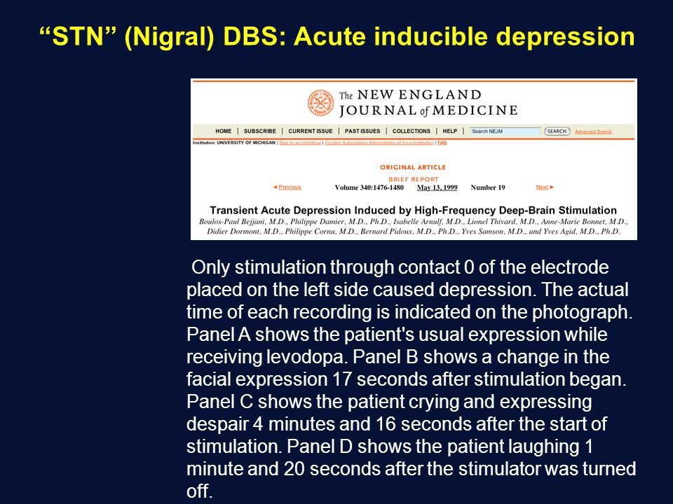 STN (Nigral) DBS: Acute inducible depression Only stimulation through contact 0 of the electrode placed on the left side caused depression. The actual