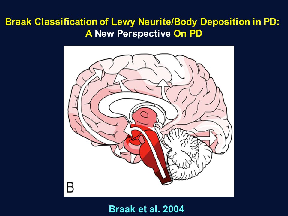 Braak Classification of Lewy Neurite/Body Deposition in PD: A New Perspective On PD Braak et al. 2004