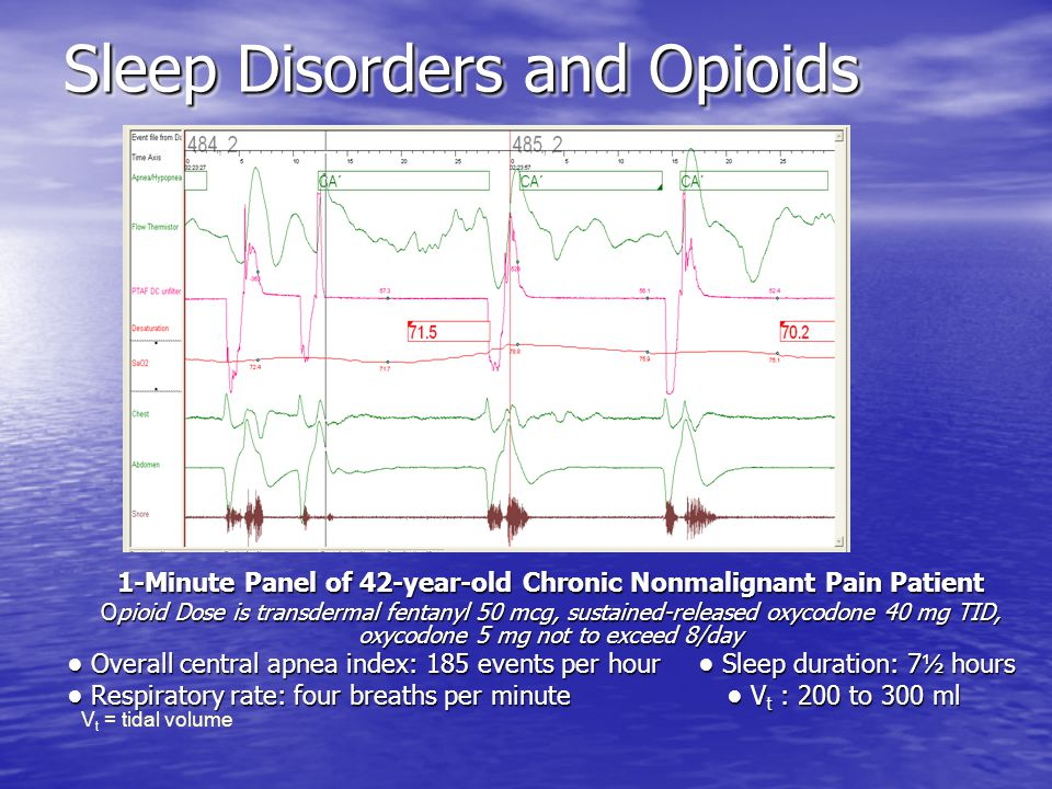 1-Minute Panel of 42-year-old Chronic Nonmalignant Pain Patient Opioid Dose is transdermal fentanyl 50 mcg, sustained-released oxycodone 40 mg TID, oxycodone 5 mg not to exceed 8/day Overall central apnea index: 185 events per hour Sleep duration: 7 ½ hours Overall central apnea index: 185 events per hour Sleep duration: 7 ½ hours Respiratory rate: four breaths per minute V t : 200 to 300 ml Respiratory rate: four breaths per minute V t : 200 to 300 ml V t = tidal volume Sleep Disorders and Opioids