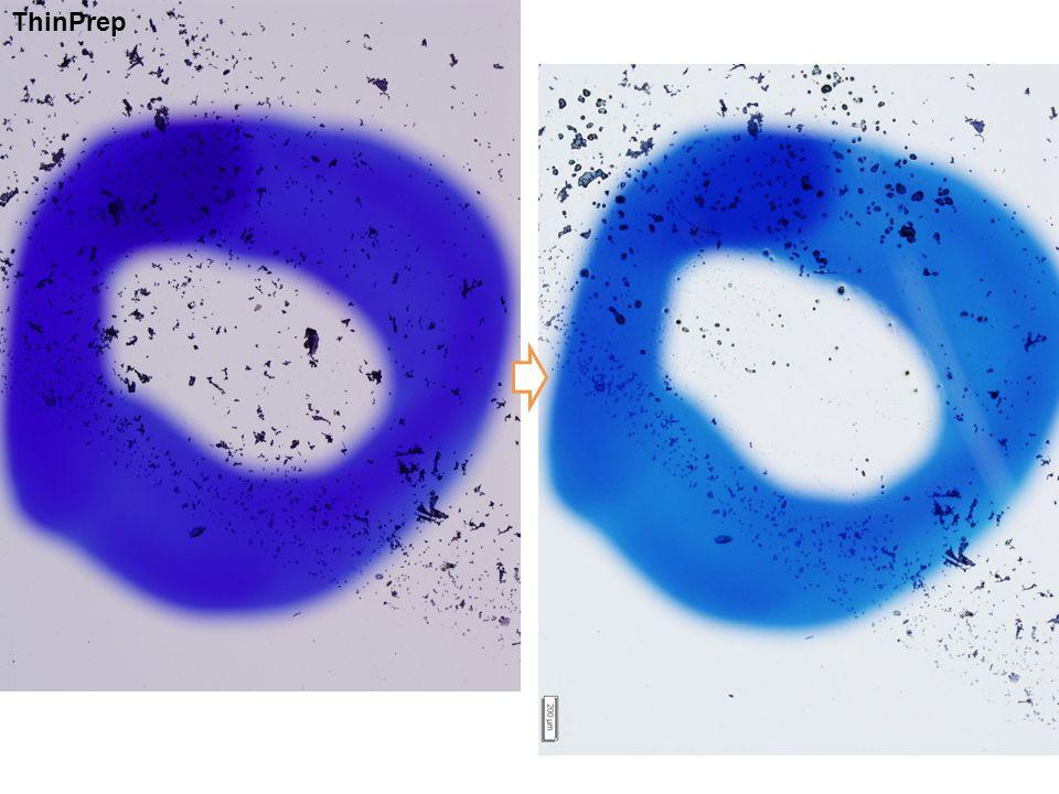 Cell block using ThinPrep