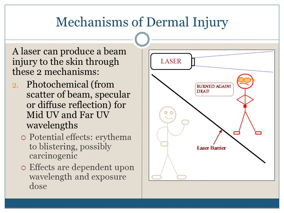 Mechanisms of Dermal Injury A laser can produce a beam injury to the skin through these 2 mechanisms: 2. Photochemical (from scatter of beam, specular