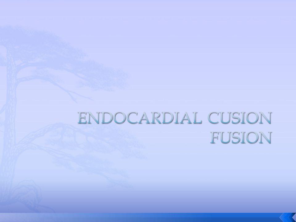 Dextrocardia : cardiac loop to the left.