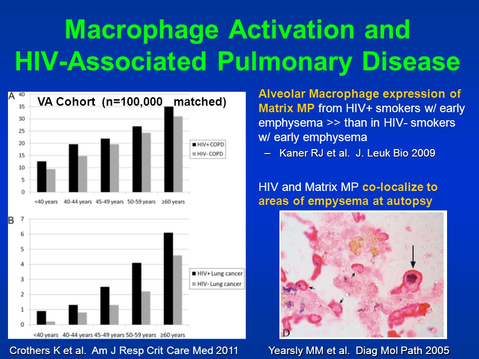Macrophage Activation and HIV-Associated Pulmonary Disease Alveolar Macrophage expression of Matrix MP from HIV+ smokers w/ early emphysema >> than in