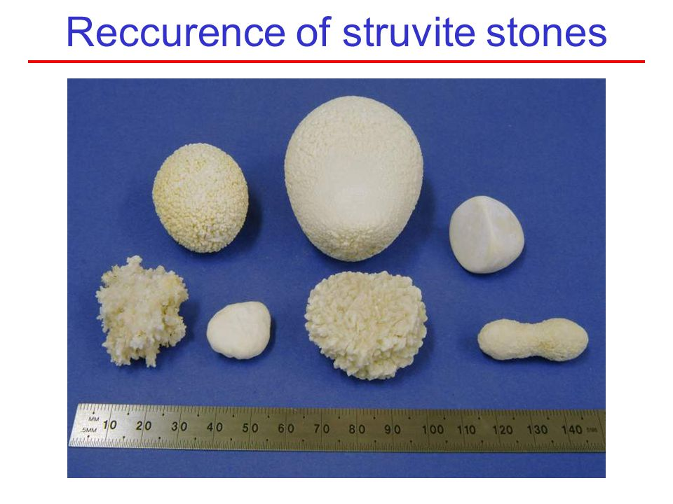 Reccurence of struvite stones