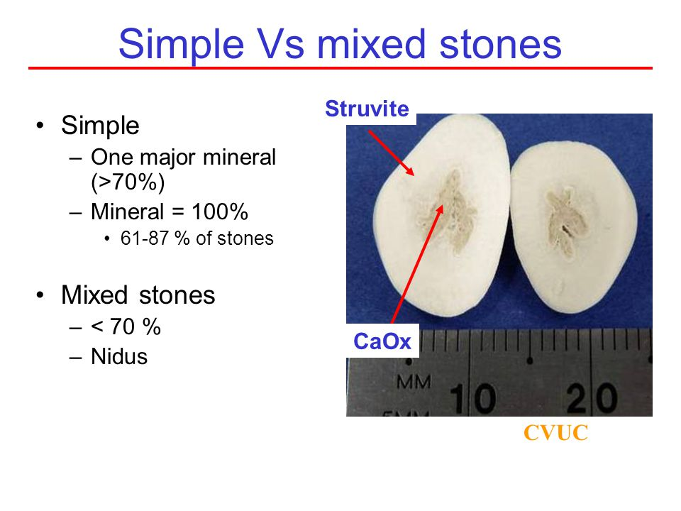Urinary stone composition CVUC