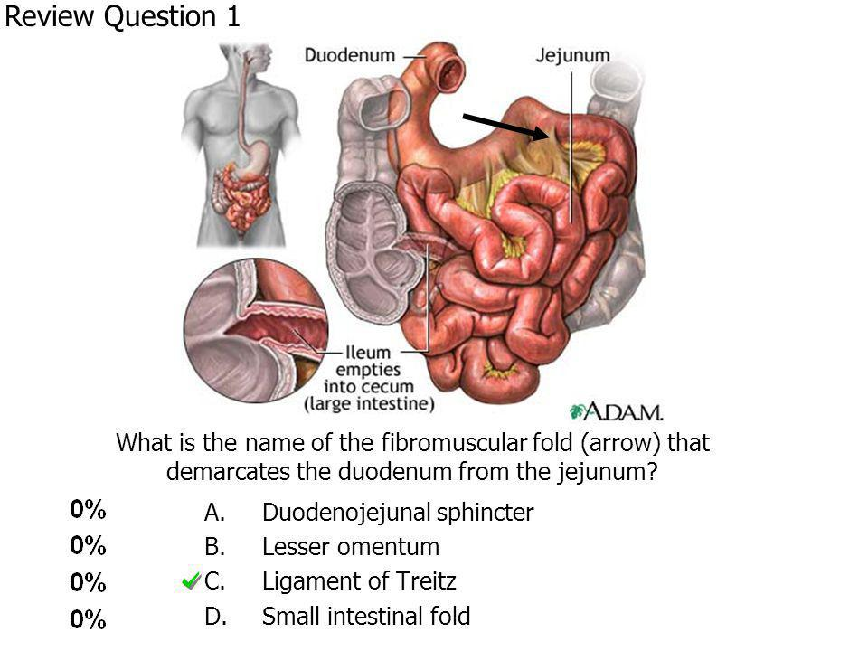 What is the name of the fibromuscular fold (arrow) that demarcates the duodenum from the jejunum.