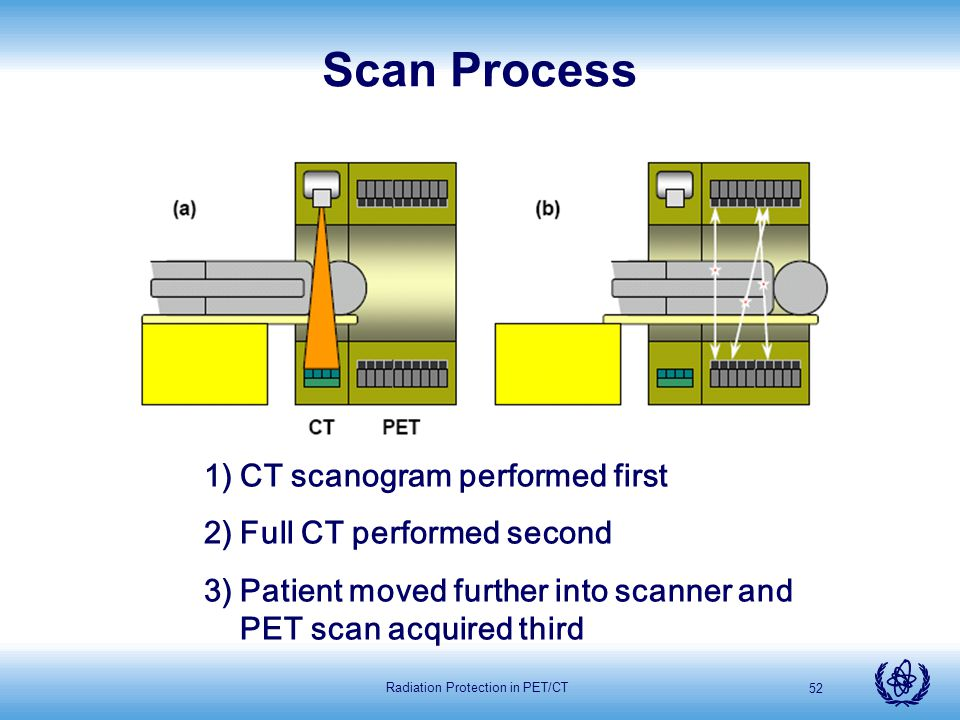 Radiation Protection in PET/CT 52 Scan Process 1)CT scanogram performed first 2)Full CT performed second 3)Patient moved further into scanner and PET