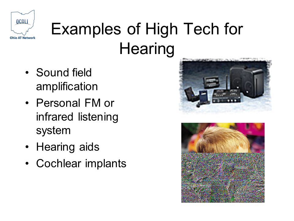 Examples of High Tech for Hearing Sound field amplification Personal FM or infrared listening system Hearing aids Cochlear implants