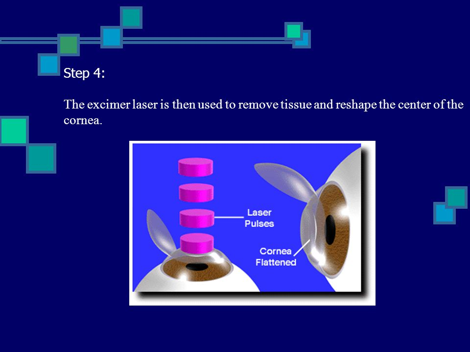 Step 4: The excimer laser is then used to remove tissue and reshape the center of the cornea.