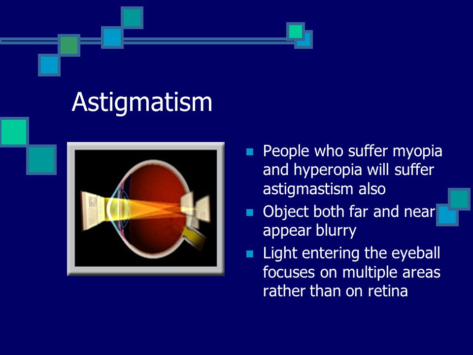 Astigmatism People who suffer myopia and hyperopia will suffer astigmastism also Object both far and near appear blurry Light entering the eyeball focuses on multiple areas rather than on retina