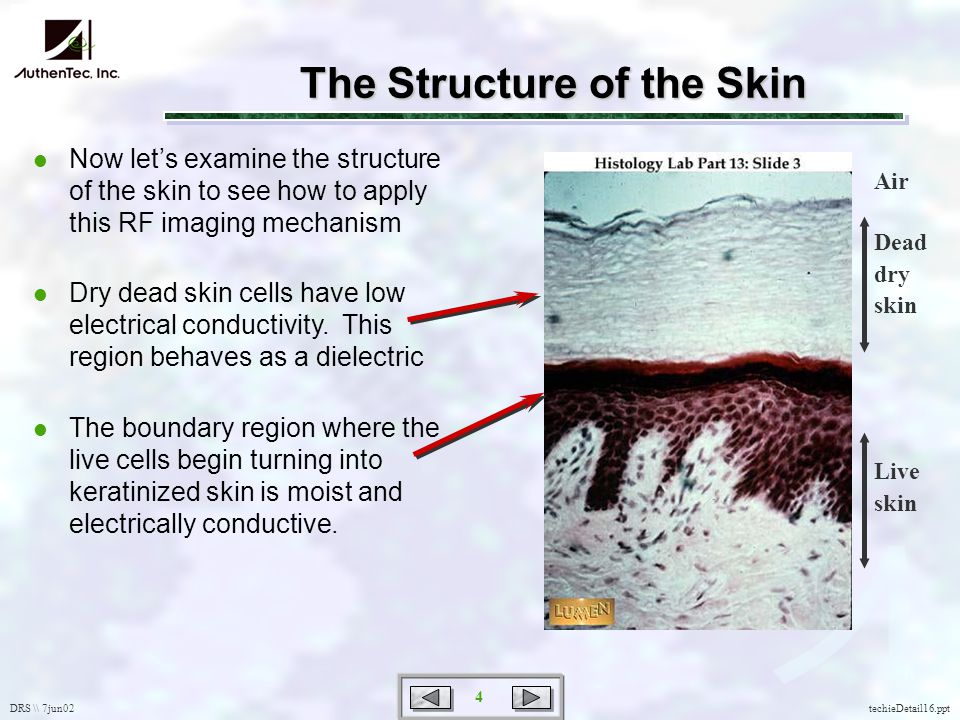 DRS \\ 7jun02 4 techieDetail16.ppt l Now lets examine the structure of the skin to see how to apply this RF imaging mechanism l Dry dead skin cells have low electrical conductivity.